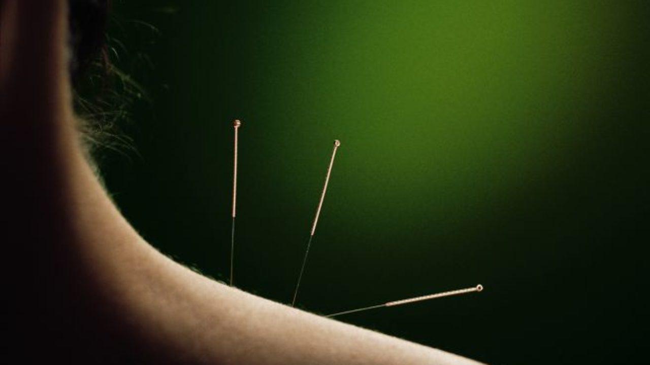 l agopuntura per perdere peso funzionali